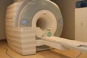 MRI's