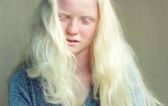 This is a photo of a girl diagnosed with Albinism