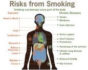 Risks of Tobacco