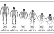 Adults with Osteogenesis