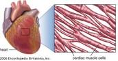 Cardiac: