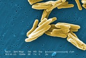 Image of bacteria
