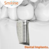 Teeth Implants in Hyderabad