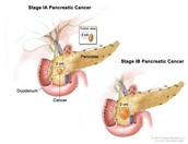 A detailed image of pancreatic cancer