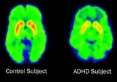The difference in a controlled subject and a kid with adhd.