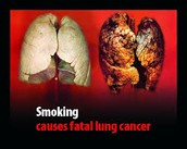 Men have a higher chance of lung cancer than females