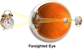 Health Concern : Vision