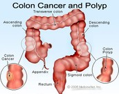 What Causes Colon Cancer?