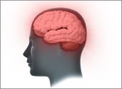 Early, Intermediate, and Severe Dementia