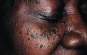 Dermatosis on the eye area