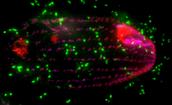 Immuno-EM Fluorescent Image