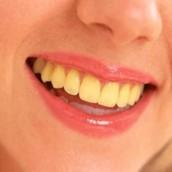 Yellowing of teeth