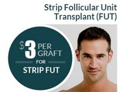 Affordable Hair Transplants San Francisco