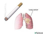 The causes of Lung Cancer are...