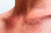 Enrojecimiento y comezón de la piel por el uso de la Hidroquinona.