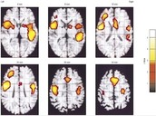 Tourette Syndrome Brain Activity