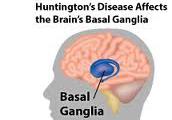 What is Huntingtons Disease?