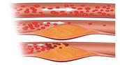 Blockage In The Arteries