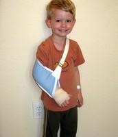 Rompí mi brazo
