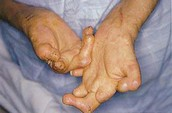 What is Leprosy known for?