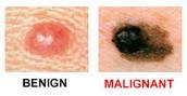 Benign vs malignant