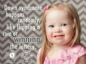 How common is Down's Syndrome?