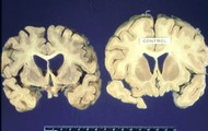 Human Brain with BSE