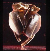 The first artificial heart in the world. (Description)