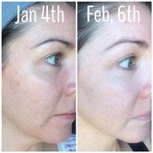 30-Day Results
