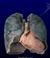 What your Lungs look like after smoking