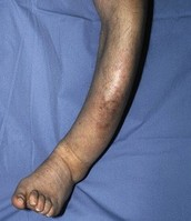 Severely damaged leg, cause from Paget's Disease