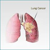 Lung cancer is the leading cause of cancer deaths in both men and women in the United States and worldwide. In the U.S., lung cancer is responsible for 29% of cancer deaths