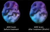 ADHD Brain With Treatment and ADHD Brain Without Treatment Comparison