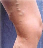 Types of varicose veins