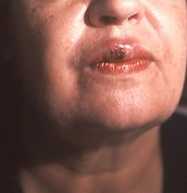 Syphilis on the mouth