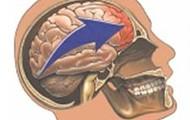 Brain Hitting Skull