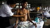 Tuberculosis case in India 2011