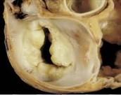 Healthy heart valve