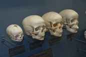 More about Osteology...