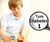 General Background on Type 1 diabetes