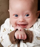 baby with down syndrome