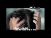 Enrojecimiento y comezón en el cuero cabelludo.