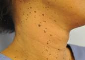 Dermatosis papulosa nigra on a patient neck