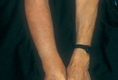 Example 1 of Lymphedema