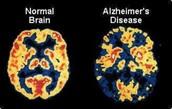 alzheimers scan