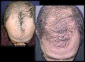 Facial Hair Transplants Boca Raton by Dr. Glenn Charles