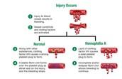 How hemophilia affects blood clotting
