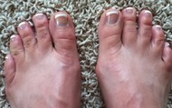 Fourth Toes