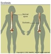 Example of scoliosis