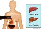 Gezond lever/Hepatitis